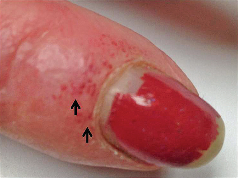 Finger nail changes: A red flag for connective tissue disease Fegley