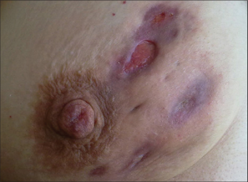 Figure 1: Skin lesions of a patient with idiopathic granulomatous mastitis. Clinical presentation may mimic locally advanced breast carcinoma. Source: Gurleyik <i>et al</i>.<sup>[9]</sup> Image used under the terms and conditions of the creative commons attribution noncommercial license (<a target=