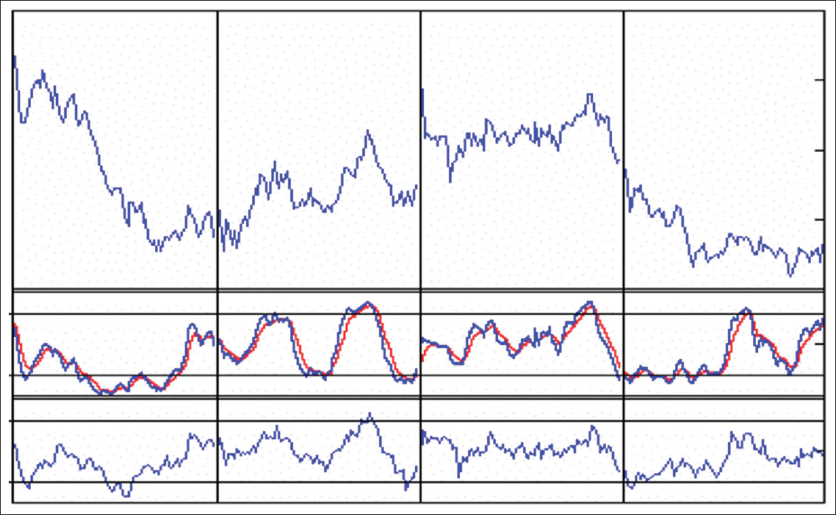 Figure 2: Example of the stochastic oscillator and relative strength index indicators used in short-term (minute-to-minute) analysis of stock price movement. Each vertical bar represents 1 calendar day. The patterns observed for financial or biomedical variables collected on minute-to-minute basis are very similar to patterns observed for biomedical variables collected on weekly basis