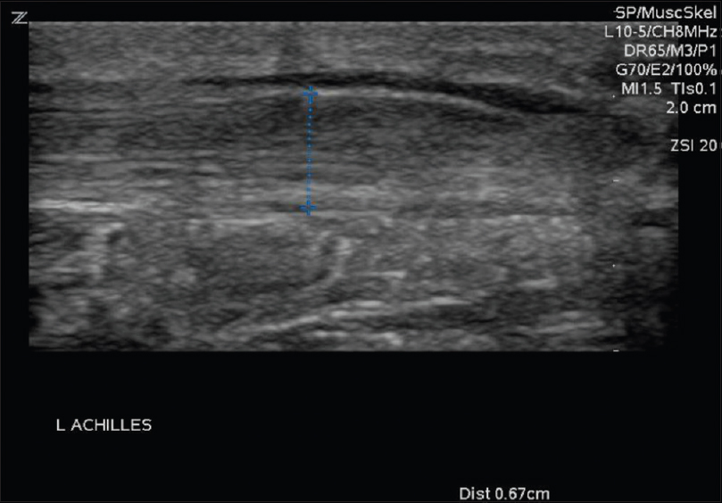 Figure 4: Left Achilles proximal to rupture. Measurement of Achilles; tendon width in blue with values in the lower right corner of the image