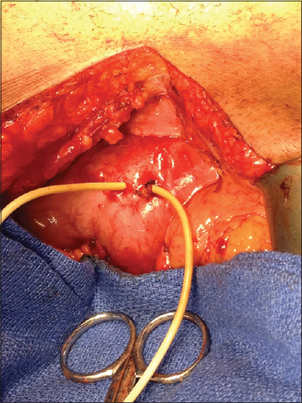 Figure 3: Ventriculoperitoneal shunt perforating the pylorus in an adult
