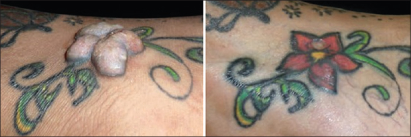 682bb7ac1 Figure 7: An example of hypersensitivity specific to red tattoo pigment  (left) with long-term appearance of telangiectasia and mild atrophy.